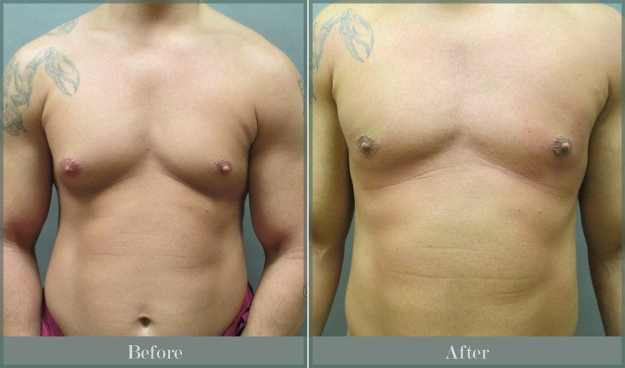 Breast Male - Male Breast Reduction Atlanta GA