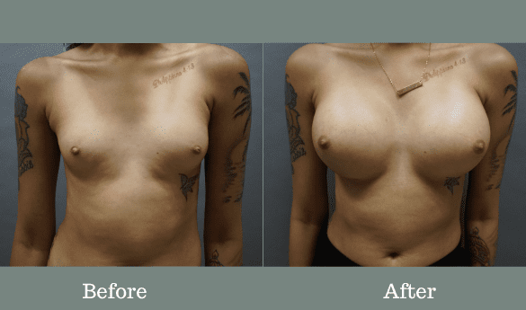 375cc High Profile silicone implants under the muscle