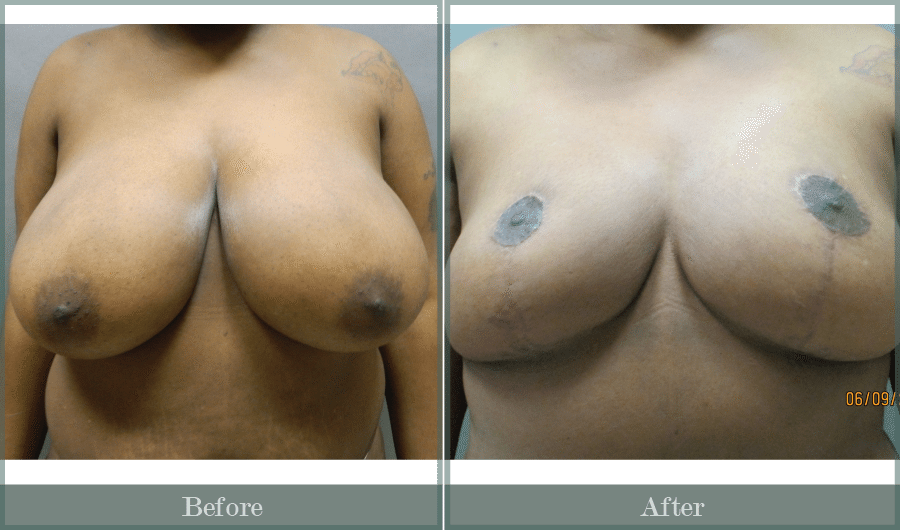 patient_17_breast_reduction-01