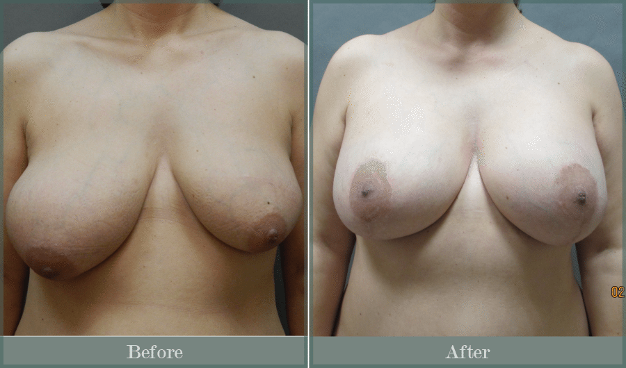 Patient 18 Lift Front 011 - Breast Lift Atlanta GA