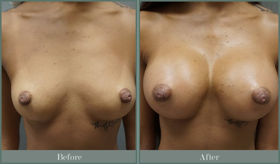 before-after-breast-augmentation