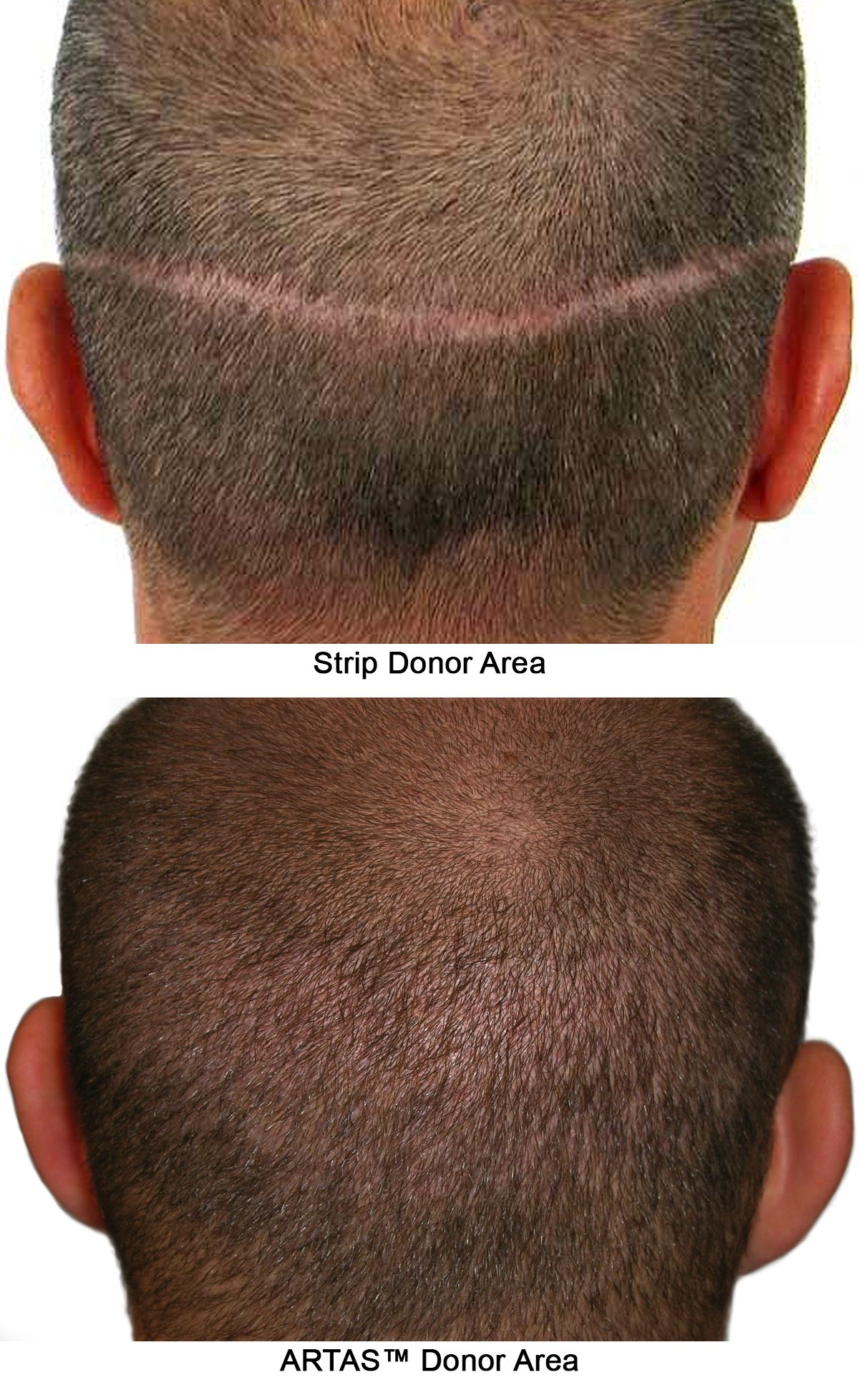 Donor Areas - Hair Restoration Atlanta GA