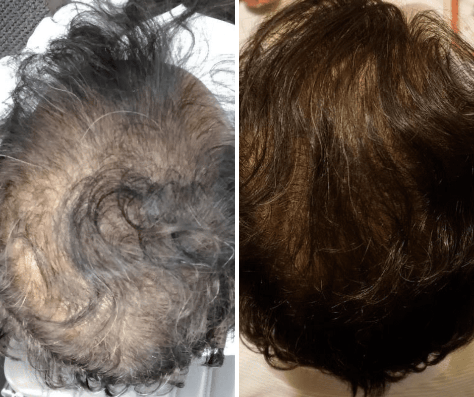 Copy of Untitled - Stem Cell Therapy for Hair Loss Atlanta GA