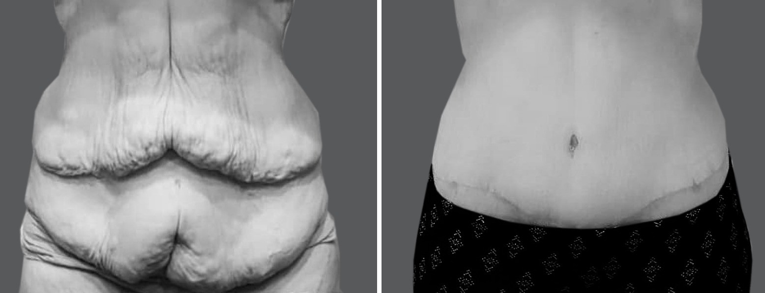 Skin Removal Surgery After Weight Loss