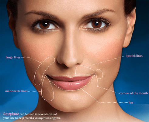 What Is Restylane Dermal Filler Used For?